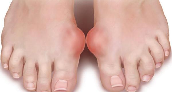 Традиционные методы лечение косточки на большом пальце ноги