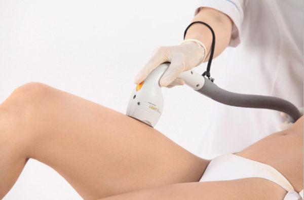 Особенности проведения лазерной эпиляции ног