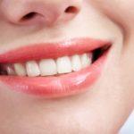 В чем особенности протезирования зубов