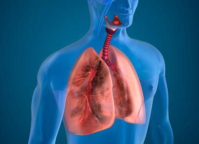 Разновидности лечения рака легких