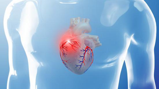Суть применения метода коронарографии для сосудов сердца