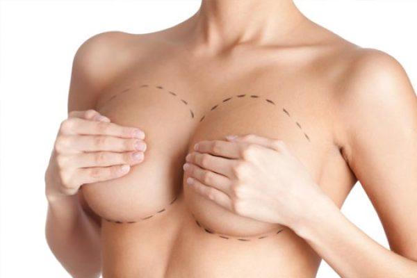 Маммопластика коррекция асимметрии - быть снова красивой