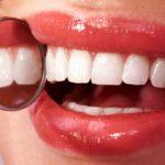 Здоровье зубов начинается со своевременного лечения
