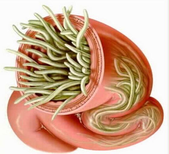 Самые известные паразиты в теле человека