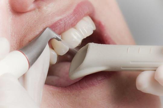 Профессиональная гигиена полости рта – залог здоровья и красоты