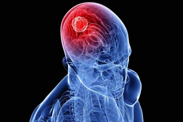 Как не пропустить первые симптомы рака головного мозга