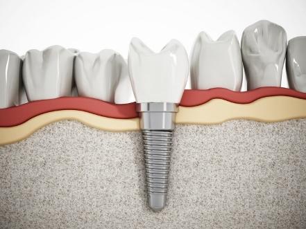 Имплантация зубов: методы, этапы, особенности и возможности