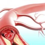 Атеросклероз: современные и классические методы лечения