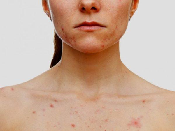 Высыпания на коже: какие бывают и что это такое?