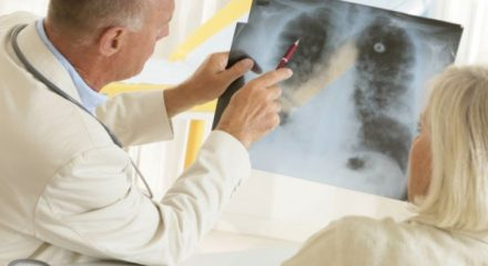 Выявление рака на ранних и поздних стадиях опытным путем