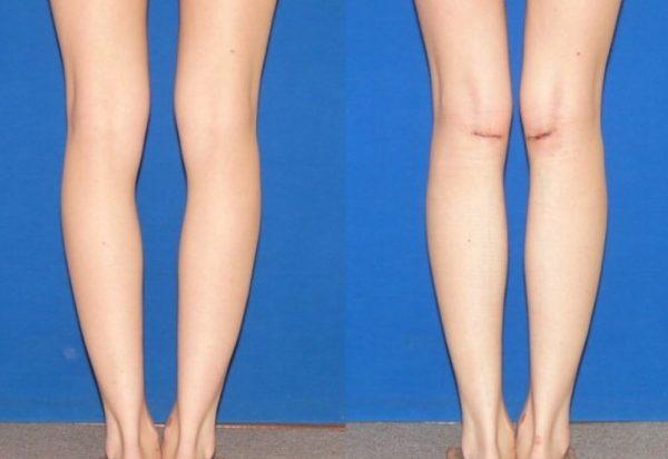 Современные и эффективные методы коррекции формы ног