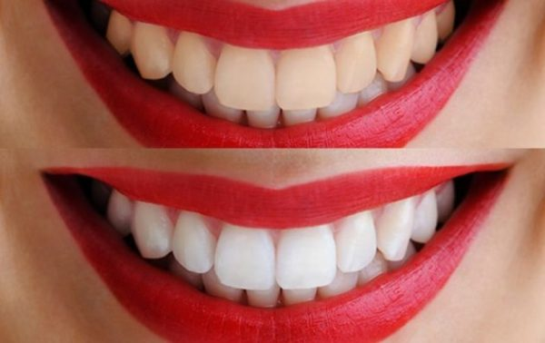 Виды эффективного отбеливания зубов