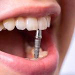 Зубные имплантаты: какими они бывают и чем отличаются?