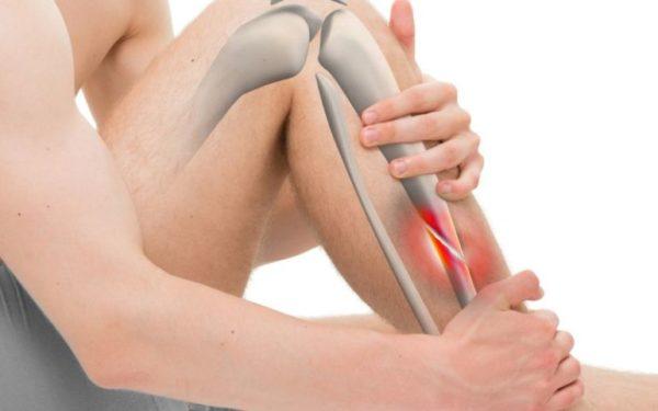 Как происходит диагностика и лечение закрытых переломов?