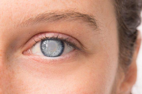 Как быстро созревает катаракта?