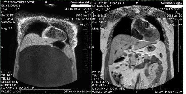 МРТ брюшной полости и забрюшинного пространства: показания и особенности диагностики