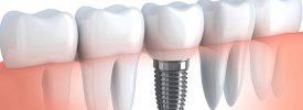 Имплантация зубов. Зачем она нужна, и как проходит процедура