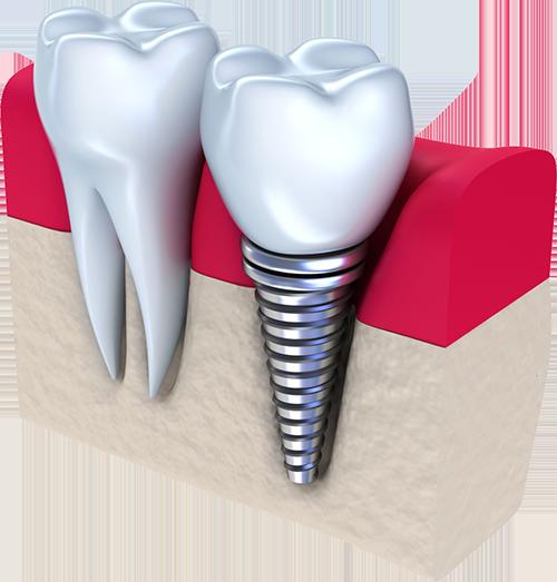 Что такое протезирование зубов